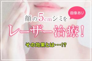 【画像あり】5cmのシミを消したい!レーザー治療の経過・効果を正直レビュー